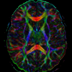 Brain Scan MRI in color