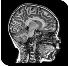Brain Imaging Reveals Adhd As >> Measuring The Brain Kennedy Krieger Institute