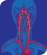 This magnetic resonance angiogram, developed at the Kirby Center, delineates arteries of the head and neck.