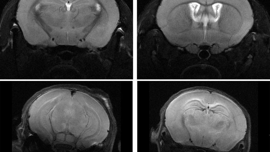 High Resolution Neuroanatomy