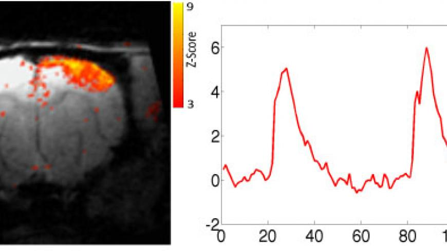 Functional MRI Z-maps